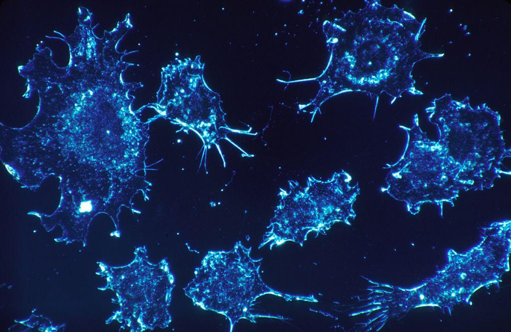 Des chercheurs israéliens disent avoir trouvé un moyen de freiner la croissance des cellules cancéreuses